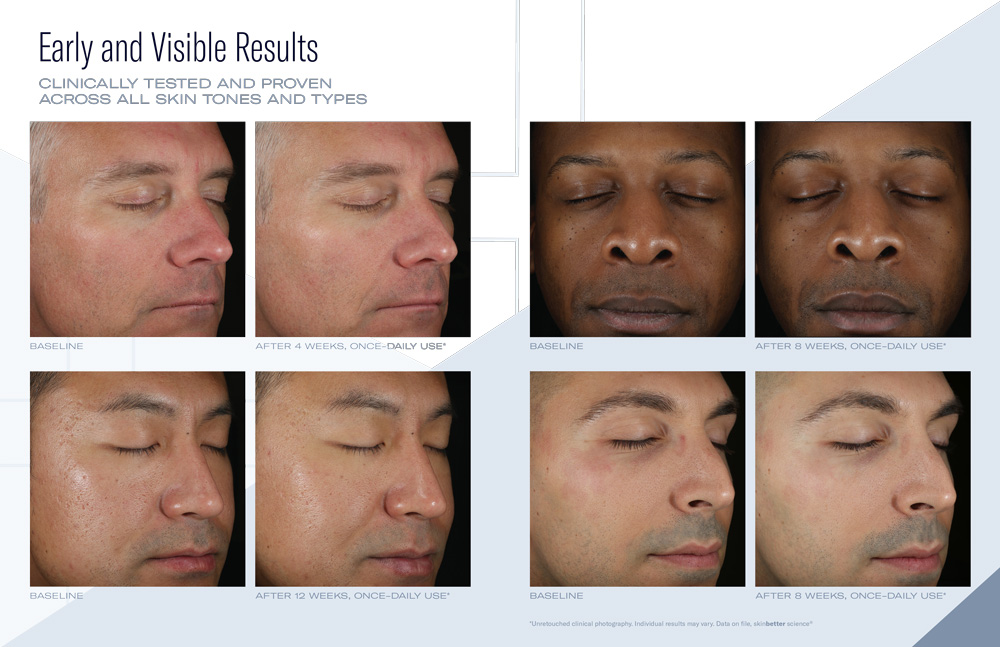 Skinbetter Science Solo Hydrating Defense MEN Results