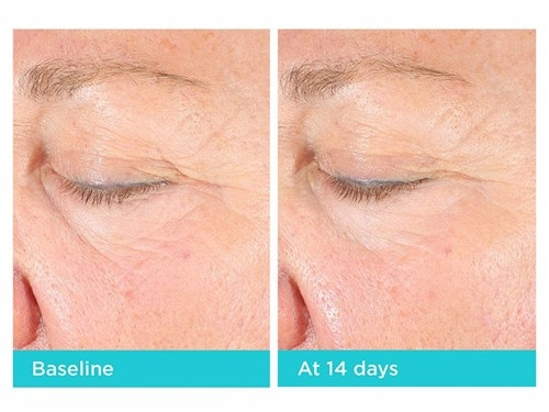 Neocutis Lumiere Firm Before and After