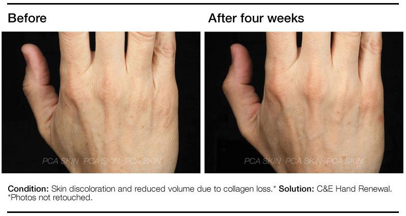 PCA C&E Hand Renewal Before and After