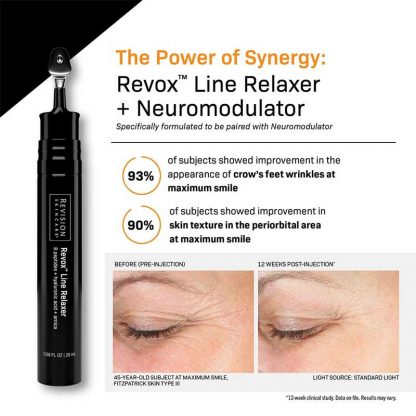 Revision Revox Line Relaxer Before and After